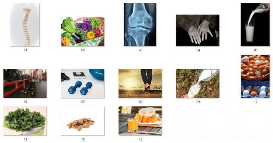 Healthy Bones Royalty Free Images